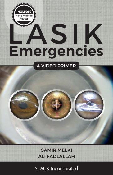 LASIK Emergencies: A Video Primer