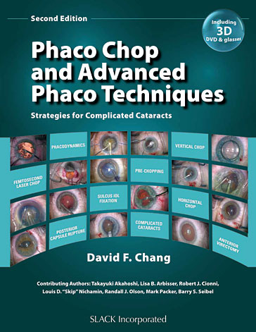 Phaco Chop and Advanced Phaco Techniques: Strategies for Complicated Cataracts, Second Edition