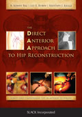 Direct Anterior Approach to Hip Reconstruction