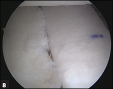 Allograft placed flush to the glenoid following screw fixation