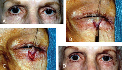 How Do I Manage Lower Eyelid Malposition Following Lower ...