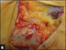 The completed repair is shown after excess FiberTape is cut and all sutures are tied