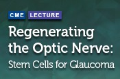 Regenerating the Optic Nerve: Stem Cells for Glaucoma
