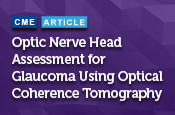 Optic Nerve Head Assessment for Glaucoma Using Optical Coherence Tomography