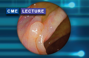 Advanced Endoscopic Imaging: Recent Progress and Clinical Implications