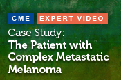 Case Study: The Patient with Complex Metastatic Melanoma