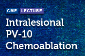 Intralesional PV-10 Chemoablation