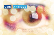 Risk Factors and Diagnosis of Ocular Surface Disease