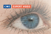 Keeping an Eye Out for Dry Eye Disease