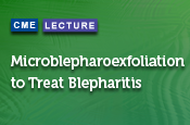 Microblepharoexfoliation to Treat Blepharitis