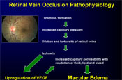 What Is New in the Management of Retinal Vein Occlusion