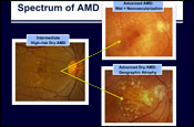 What's the Scientific Rationale for Nutritional Therapy for Age-Related Macular Degeneration: Reflections on the Pathogenesis of AMD