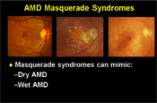 AMD Masquerade Syndromes