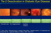 Can We Modify the Progression of Diabetic Retinopathy?
