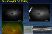 Update on Diagnosis and Treatment of Idiopathic Central Serous Chorioretinopathy