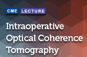 Intraoperative Optical Coherence Tomography - Where Do We Stand?