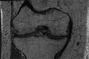 Emerging Imaging Technologies for Osteoarthritis