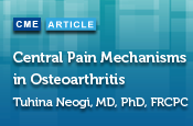 Central Pain Mechanisms in Osteoarthritis