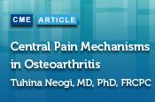 Central Pain Mechanisms in Osteoarthritis