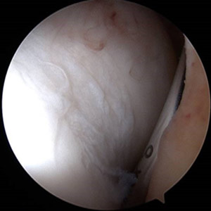 arthroscopic findings of cartilage wear