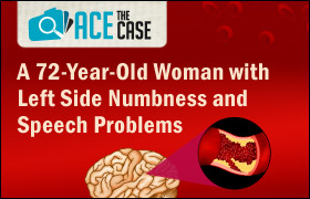 Ace the Case: 72 Year-old Woman with Left Side Numbness and Speech Problems