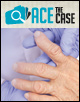 Ace the Case: A 50-Year-Old White Female with a 9-Year History of Rheumatoid Arthritis