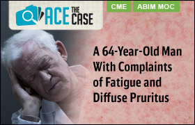 Ace the Case: A 64-Year-Old Man with Complaints of Fatigue and Diffuse Pruritis