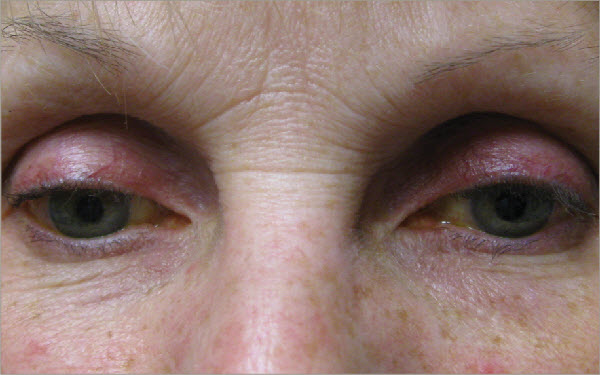 Figure 17. This patient developed periorbitopathy after a few years on a prostaglandin.