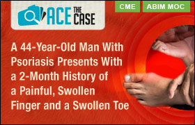 Ace the Case: A 44-Year-Old Man With Psoriasis Presents With a 2-Month History of a Painful, Swollen Finger and a Swollen Toe