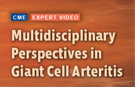Multidisciplinary Perspectives in Giant Cell Arteritis: A Team-based Approach for Improved Quality of Care