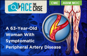 Ace the Case: A 63-Year-Old Woman With Symptomatic Peripheral Artery Disease