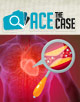 Ace the Case: A 53-Year-Old Man With Dyslipidemia and Coronary Artery Disease