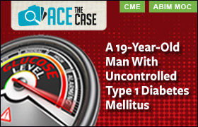 Ace the Case: A 19-Year-Old Man With Uncontrolled Type 1 Diabetes Mellitus