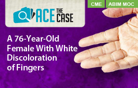Ace the Case: A 76-Year-Old Female With White Discoloration of Fingers