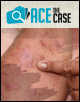 Ace the Case: A 41-Year-Old Female with a History of Severe Plaque-type Psoriasis