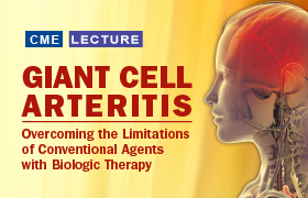 Giant Cell Arteritis: Overcoming the Limitations of Conventional Agents with Biologic Therapy