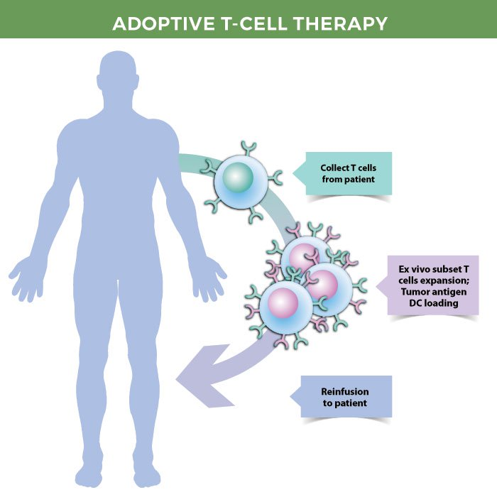 Adoptive T-cell therapy.