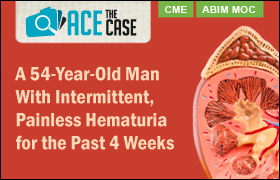 Ace the Case: A 54-Year-Old Man With Intermittent, Painless Hematuria for the Past 4 Weeks