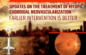 EDUCATION FOR THE TREATING EYE CARE SPECIALIST<br/><br/>Updates on the Treatment of Myopic Choroidal Neovascularization: Earlier Intervention is Better