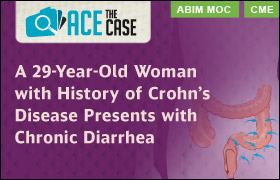 Ace the Case: A 29-Year-Old Woman with History of Crohn's Disease Presents with Chronic Diarrhea