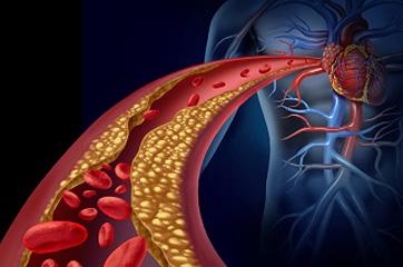 Artery Plaque