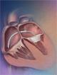 New Frontiers in Valvular Heart Disease
