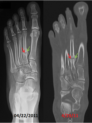Radiograph  and CT scan of the left foot.