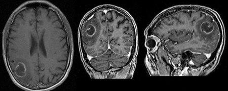 Contrast-enhanced MRI