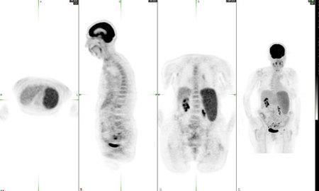 Axial, sagittal and coronar PET images and MIP image demonstrating diffuse marrow activity suggestive of diffuse bone marrow involvement with lymphoma.