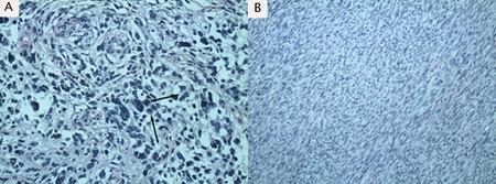 Figure 3. Histologic slides of glial (A) and sarcomatous (B)
