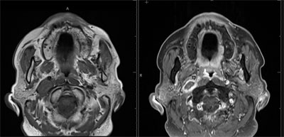 Pre-and postcontrast T1-weighted images demonstrate a large area of central nonenhancement in the mass consistent with expected posttreatment changes (Figure 4B).