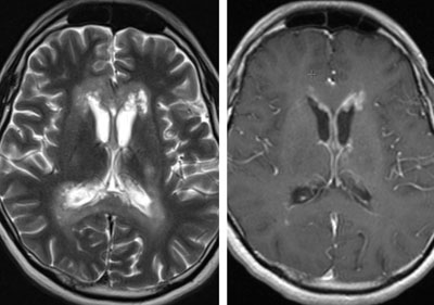 Figure 1. Axial T2-weighted (left) and post-contrast T1-weighted (right) images demonstrate confluent periventricular areas of hyperintense signal abnormality, with associated cavitation and patchy foci of accompanying nodular enhancement on post-contrast images.