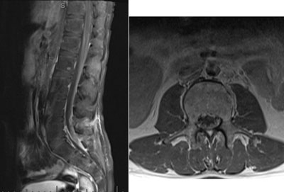 Figure 2. Sagittal (left) and axial (right) post-contrast T1-weighted images of the lumbar spine demonstrate enhancing, thickened cauda equina nerve roots with associated abnormal mass-like enhancement of the conus and distal thecal sac.
