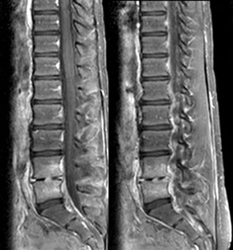 11 Year Old Female Presents With Low Back Pain Elevated Esr